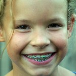 Reliving the Orthodontia Journey