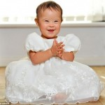 Young Girl With Down Syndrome Becomes 'Darling' of Child Modeling World